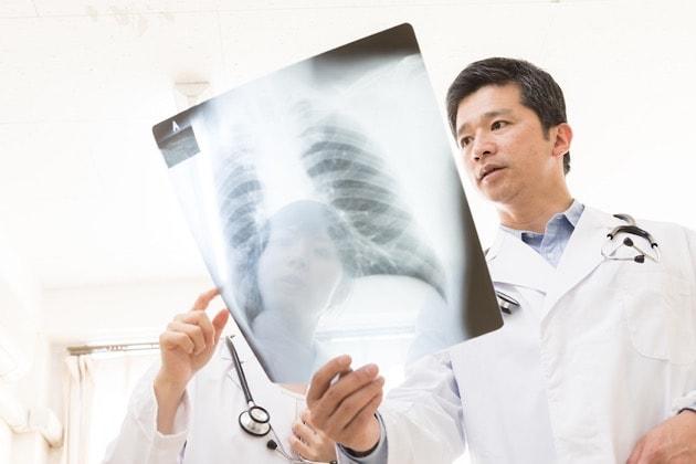 腰椎椎体骨折の増額事例